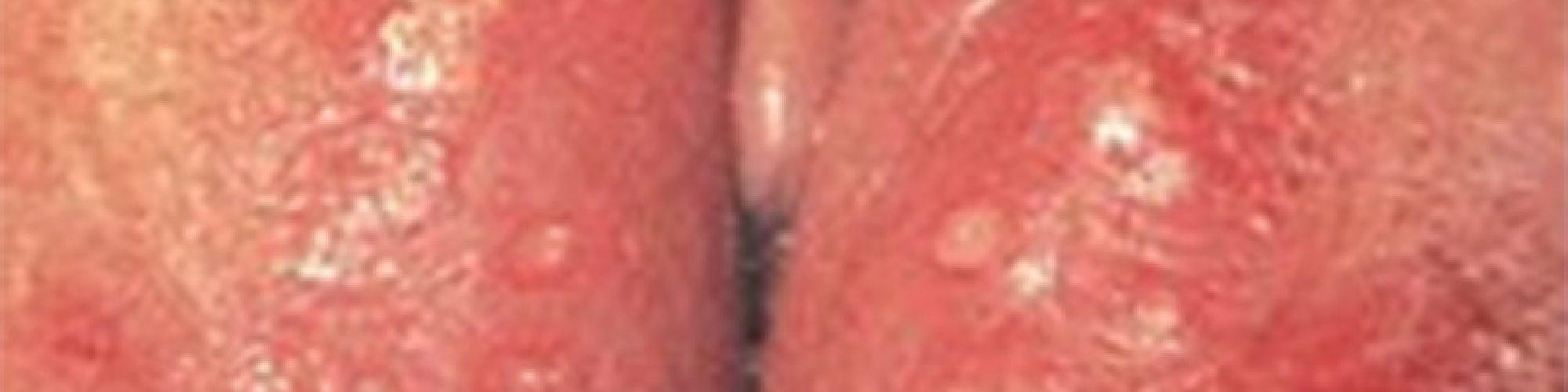 vulvo-vaginite-herpetique